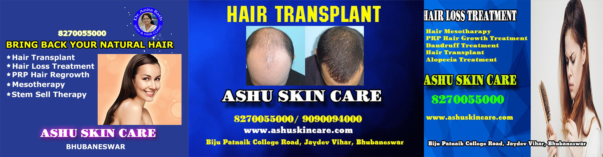 Best Hair transplant center in bhubaneswar